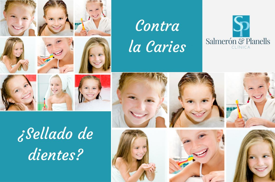 sellado de dientes caries