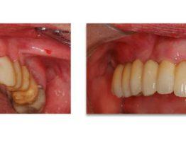 postoperatorio implantes