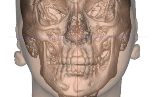 cirugia-ortognatica-general