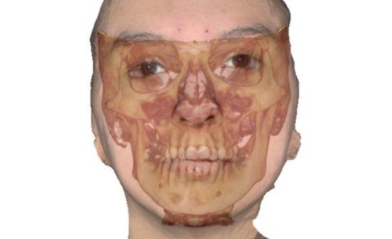 asimetria-facial-cirugia-ortognatica