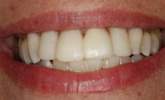 enfermedad-periodontal-grave-despues