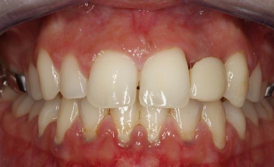 enfermedad-periodontal-leve-antes