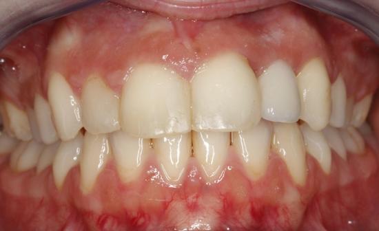 enfermedad-periodontal-leve-despues