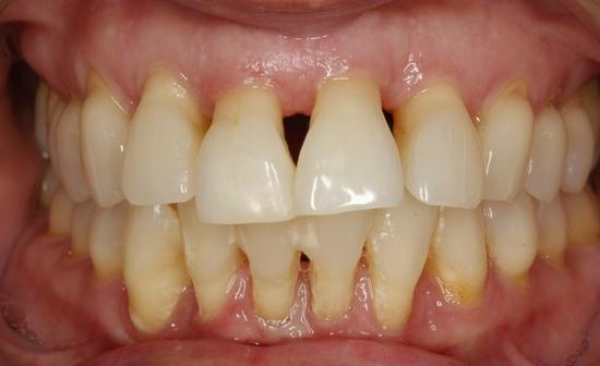 enfermedad-periodontla-grave-antes