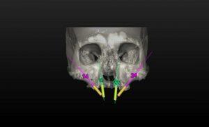 implantes-cigomaticos-dr-jose-salmeron